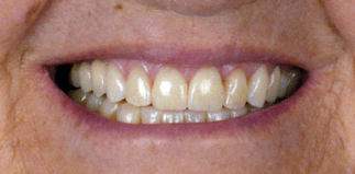 before-after_1 4b&a