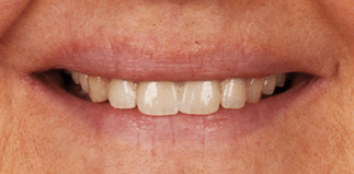 before-after_3 1b&a