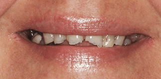 before-after_3 2b&a