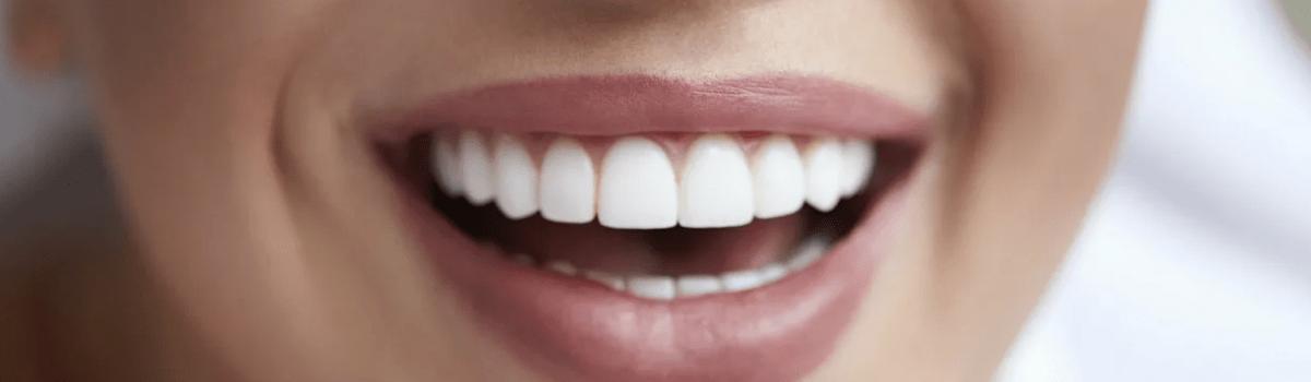 Изменения формы зубов