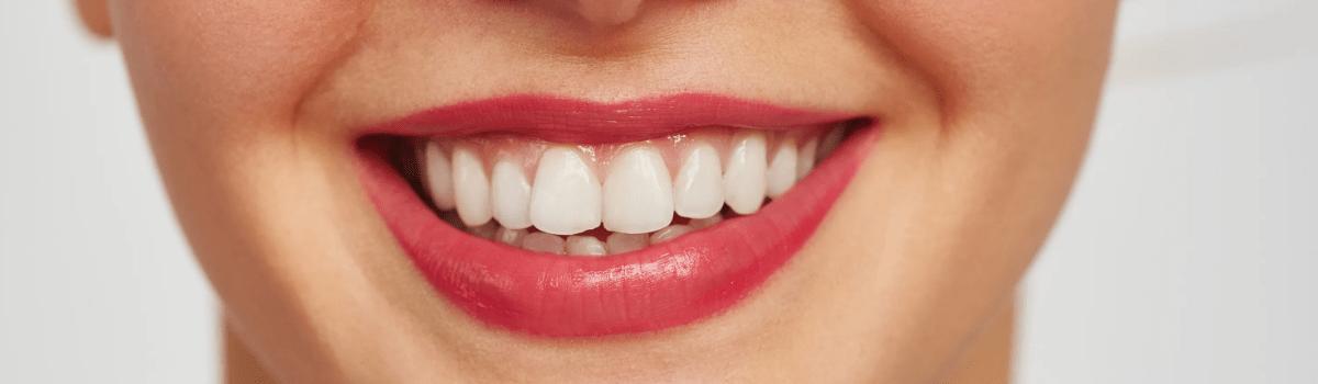 Макродентия зубов