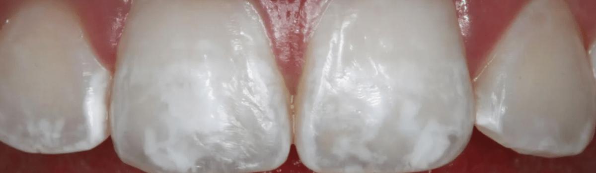 Поражение эмали зубов