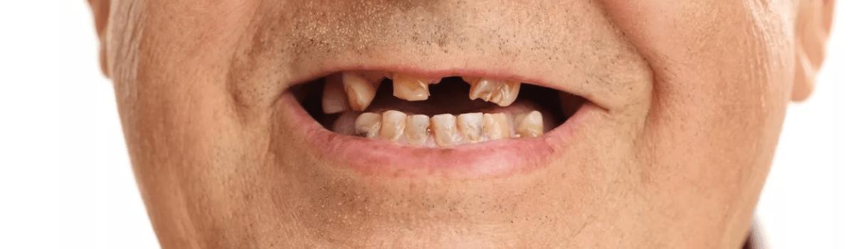 Потеря и разрушение зубов