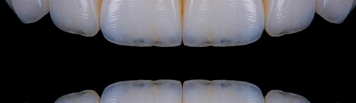 Прозрачность эмали зуба