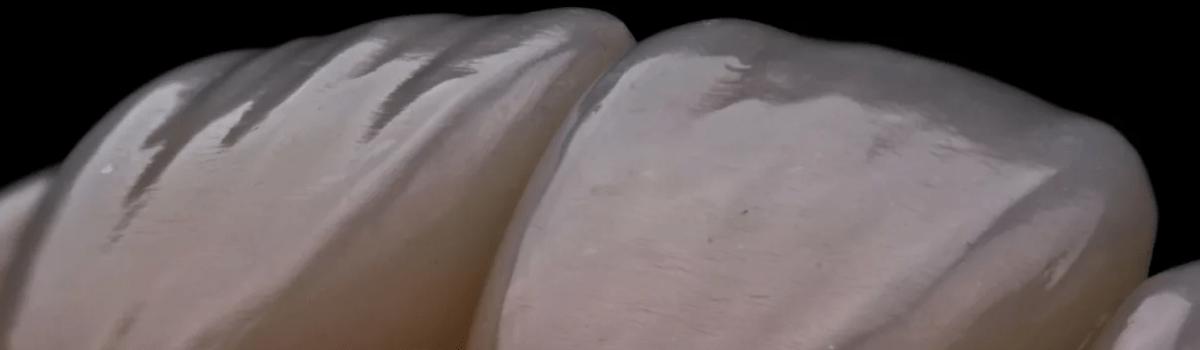 Трещины эмали зубов