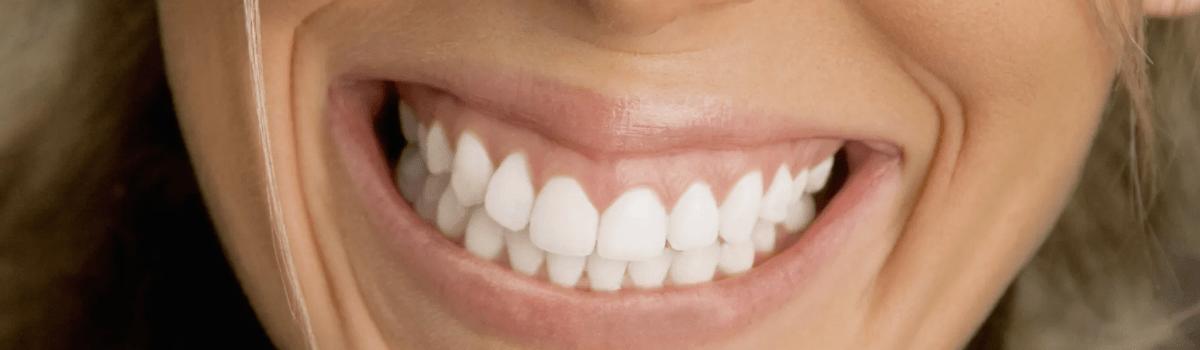 Усиленное сжатие зубов